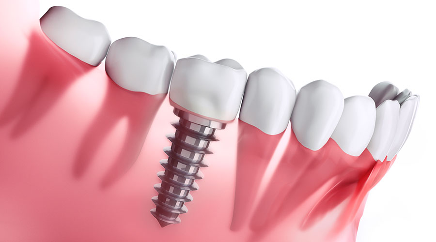 DENTAL IMPLANTS IN STONEWALL